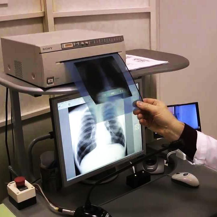 Новий шанс для пацієнтів з туберкульозом