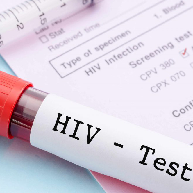 Сеть объявляет конкурс проектов в сфере ВИЧ для Закарпатской области