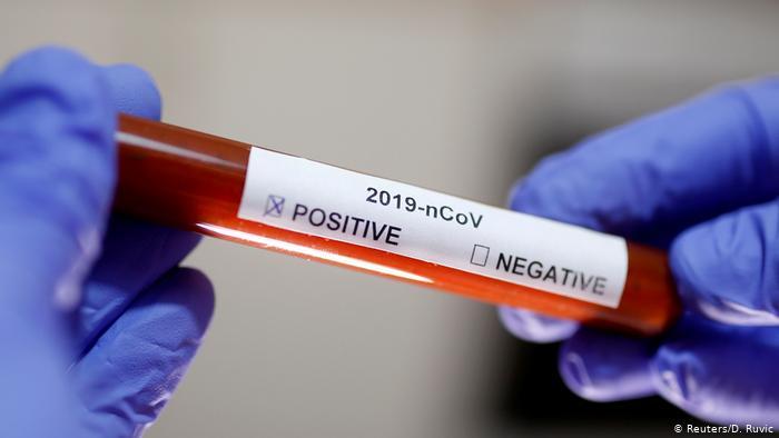 Закупка экспресс-тестов для диагностики COVID-19: больше вреда чем пользы